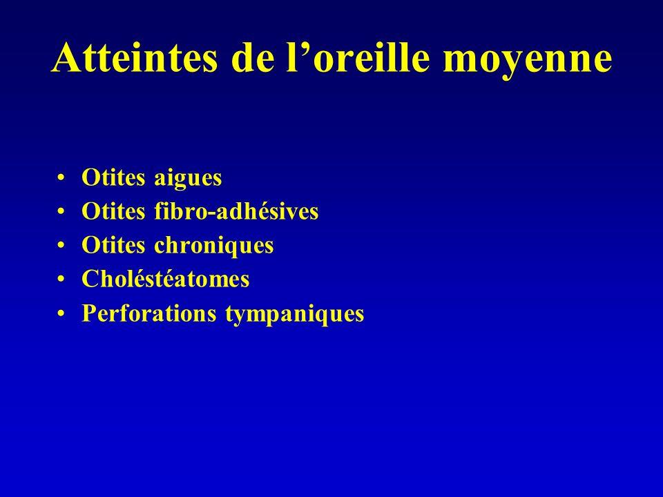 Atteintes de loreille moyenne Otites aigues Otites fibro-adhésives Otites chroniques Choléstéatomes Perforations tympaniques