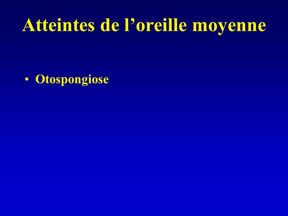 Atteintes de loreille moyenne Otospongiose