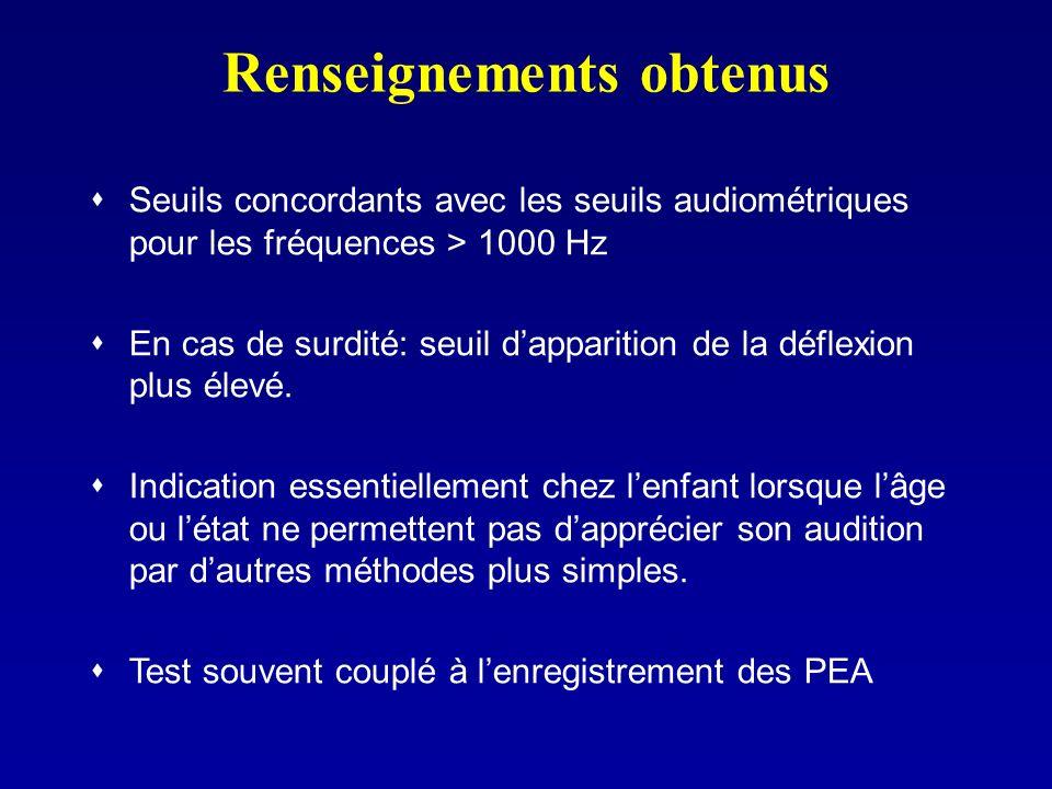 Renseignements obtenus Seuils concordants avec les seuils audiométriques pour les fréquences > 1000 Hz En cas de surdité: seuil dapparition de la défl