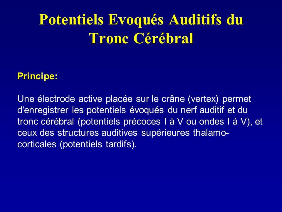 Potentiels Evoqués Auditifs du Tronc Cérébral Principe: Une électrode active placée sur le crâne (vertex) permet d'enregistrer les potentiels évoqués