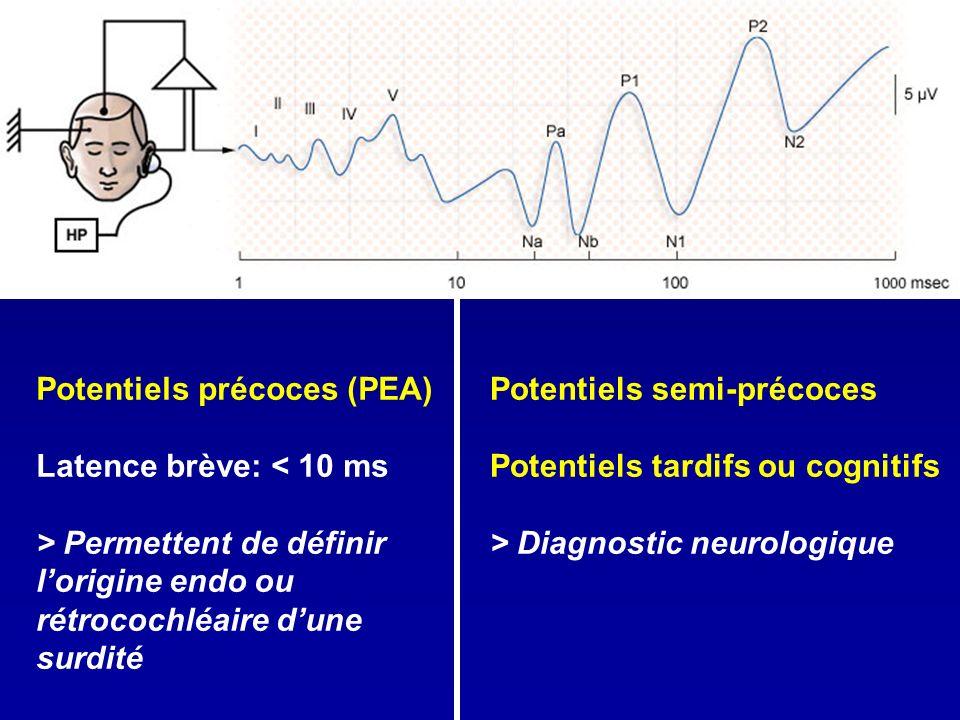 Potentiels précoces (PEA) Latence brève: < 10 ms > Permettent de définir lorigine endo ou rétrocochléaire dune surdité Potentiels semi-précoces Potent