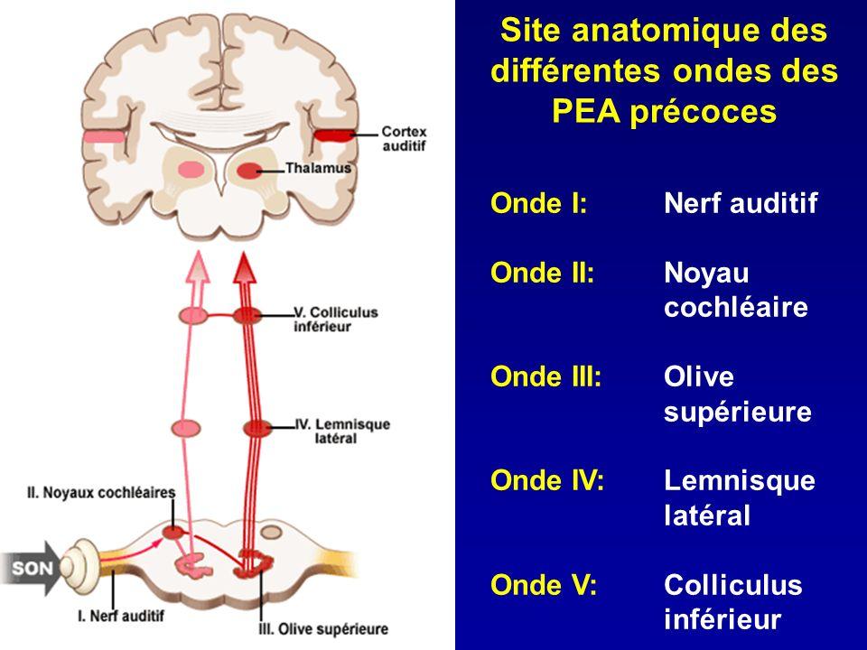 Site anatomique des différentes ondes des PEA précoces Onde I:Nerf auditif Onde II:Noyau cochléaire Onde III:Olive supérieure Onde IV:Lemnisque latéra