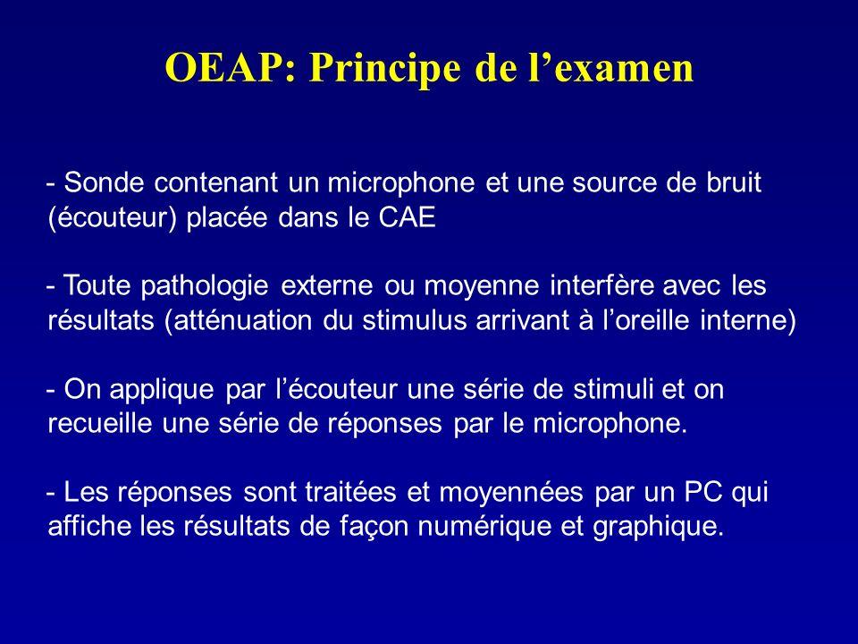 OEAP: Principe de lexamen - Sonde contenant un microphone et une source de bruit (écouteur) placée dans le CAE - Toute pathologie externe ou moyenne i