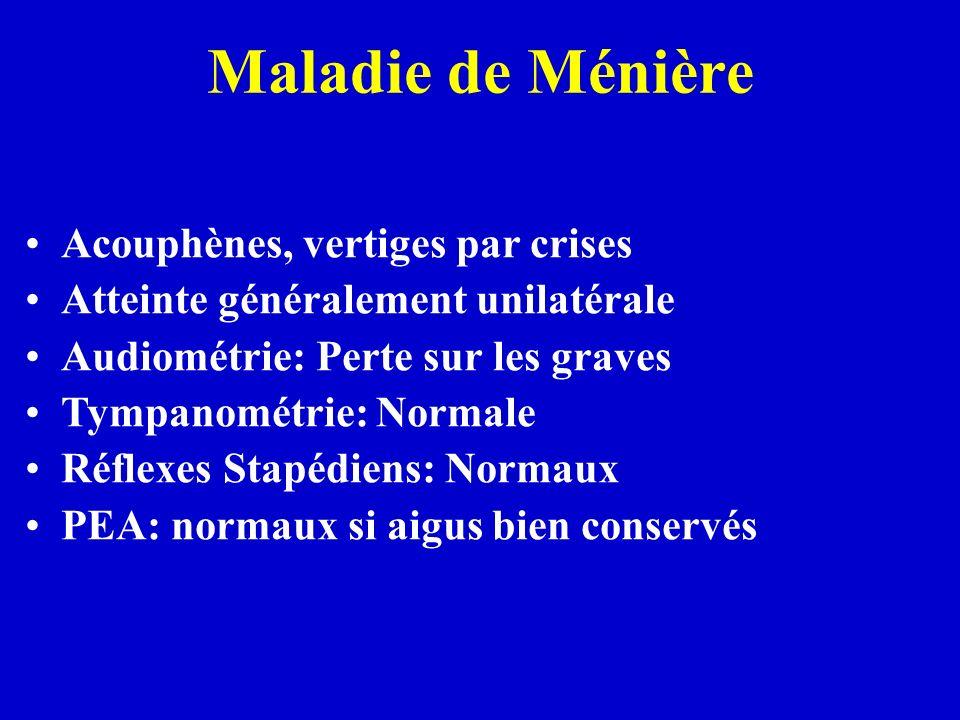 Maladie de Ménière Acouphènes, vertiges par crises Atteinte généralement unilatérale Audiométrie: Perte sur les graves Tympanométrie: Normale Réflexes