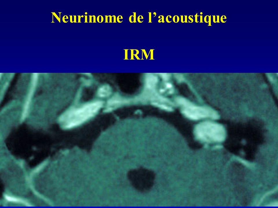 Neurinome de lacoustique IRM