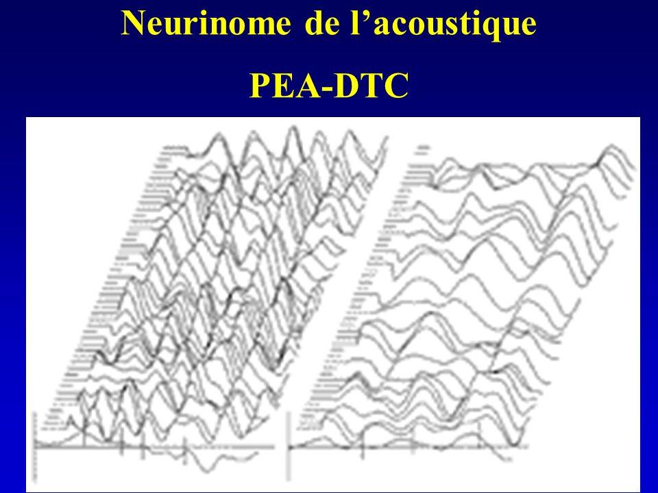 Neurinome de lacoustique PEA-DTC