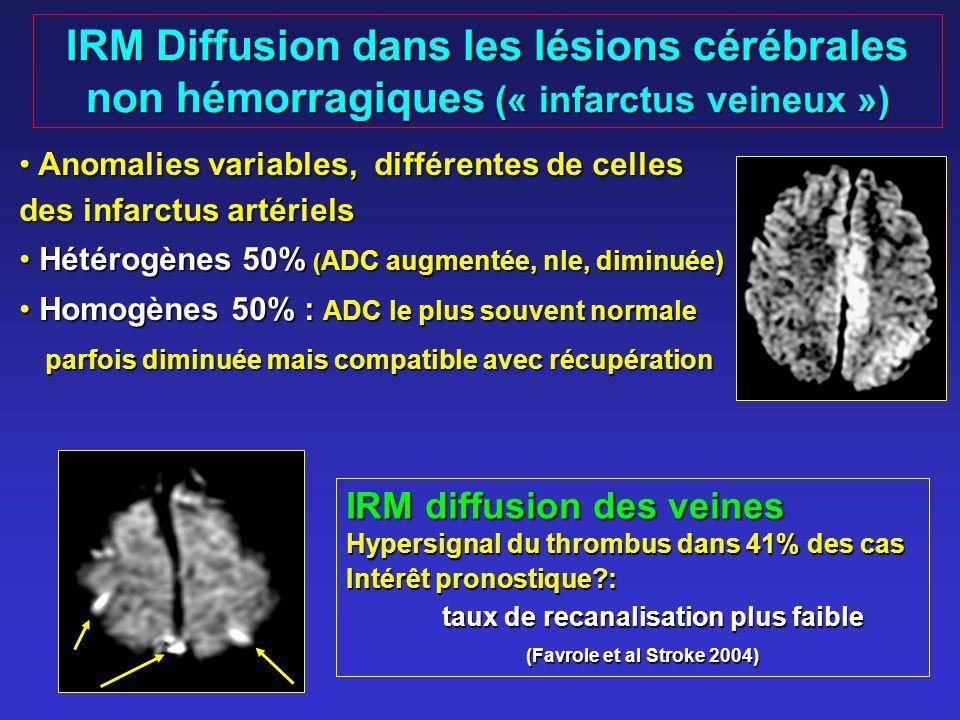 IRM Diffusion dans les lésions cérébrales non hémorragiques (« infarctus veineux ») Anomalies variables, différentes de celles des infarctus artériels Anomalies variables, différentes de celles des infarctus artériels Hétérogènes 50% ( ADC augmentée, nle, diminuée) Hétérogènes 50% ( ADC augmentée, nle, diminuée) Homogènes 50% : ADC le plus souvent normale Homogènes 50% : ADC le plus souvent normale parfois diminuée mais compatible avec récupération parfois diminuée mais compatible avec récupération IRM diffusion des veines Hypersignal du thrombus dans 41% des cas Intérêt pronostique?: taux de recanalisation plus faible (Favrole et al Stroke 2004) (Favrole et al Stroke 2004)