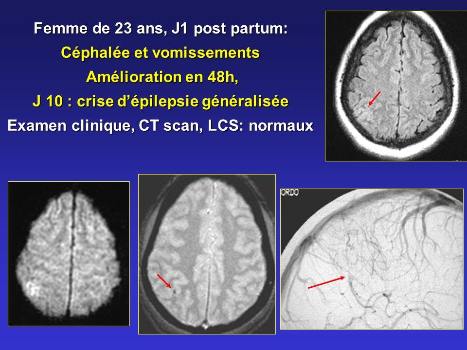 Femme de 23 ans, J1 post partum: Céphalée et vomissements Amélioration en 48h, Amélioration en 48h, J 10 : crise dépilepsie généralisée Examen clinique, CT scan, LCS: normaux