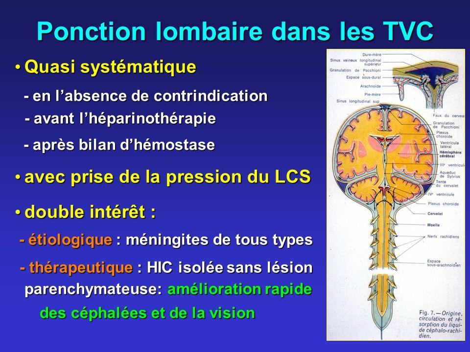 Ponction lombaire dans les TVC Quasi systématique Quasi systématique - en labsence de contrindication - avant lhéparinothérapie - en labsence de contr