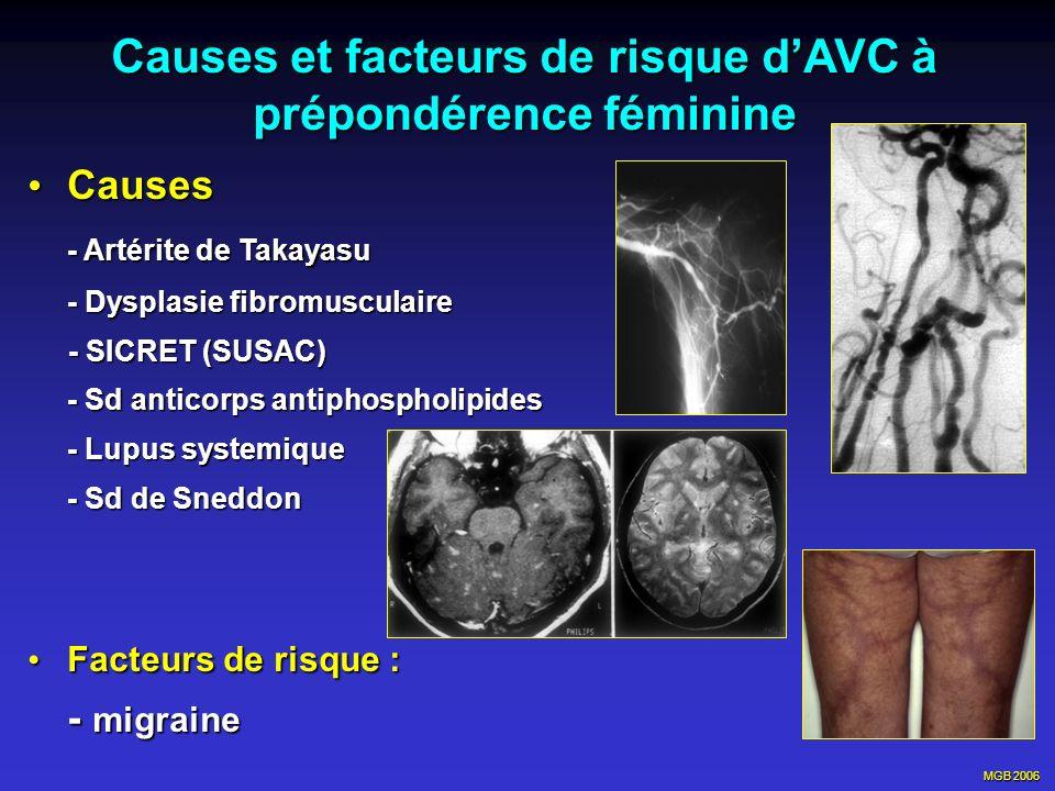 MGB 2006 Causes et facteurs de risque dAVC à prépondérence féminine Causes Causes - Artérite de Takayasu - Dysplasie fibromusculaire - SICRET (SUSAC)