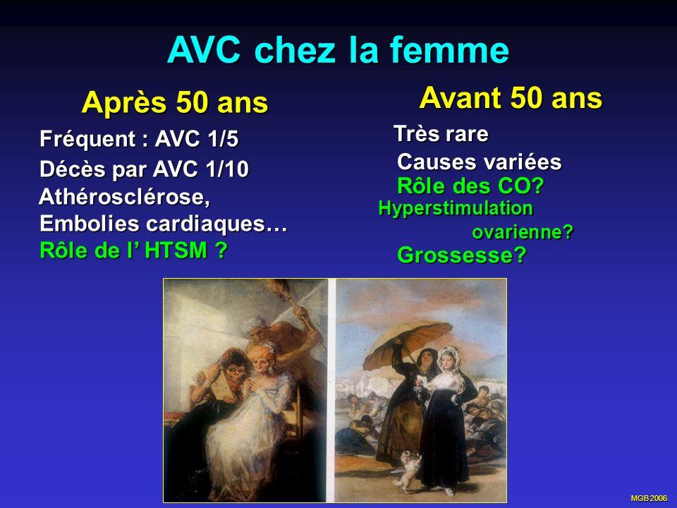 MGB 2006 AVC chez la femme Après 50 ans Après 50 ans Fréquent : AVC 1/5 Fréquent : AVC 1/5 Décès par AVC 1/10 Décès par AVC 1/10 Athérosclérose, Athér