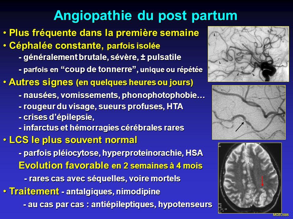 MGB 2006 Angiopathie du post partum Plus fréquente dans la première semaine Plus fréquente dans la première semaine Céphalée constante, parfois isolée