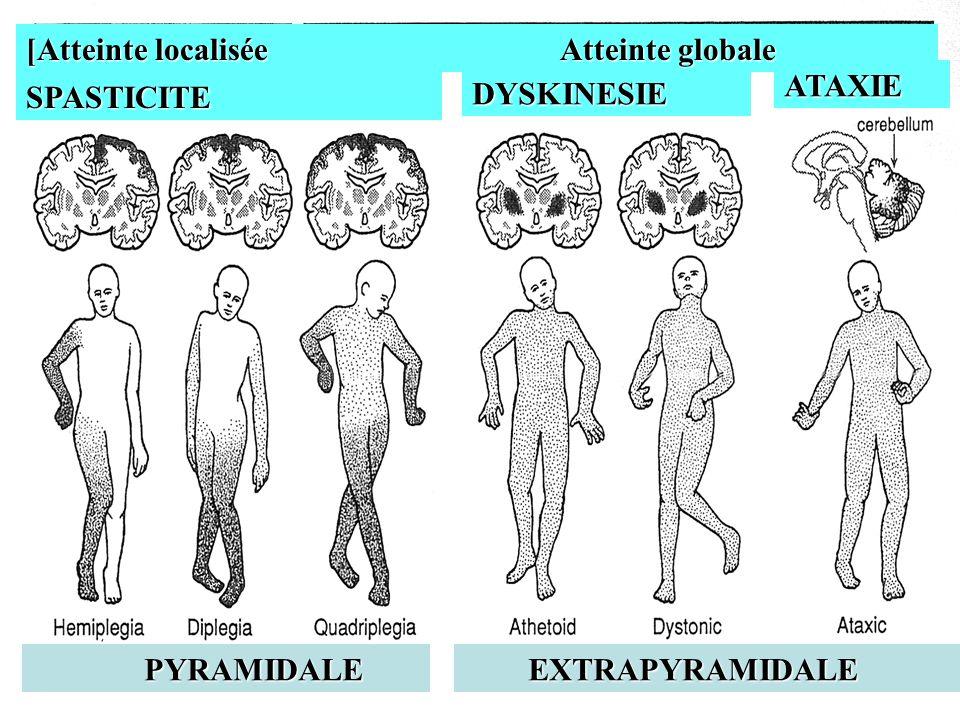 [Atteinte localisée Atteinte globale Atteinte globale SPASTICITE DYSKINESIE ATAXIE PYRAMIDALE PYRAMIDALE EXTRAPYRAMIDALE EXTRAPYRAMIDALE