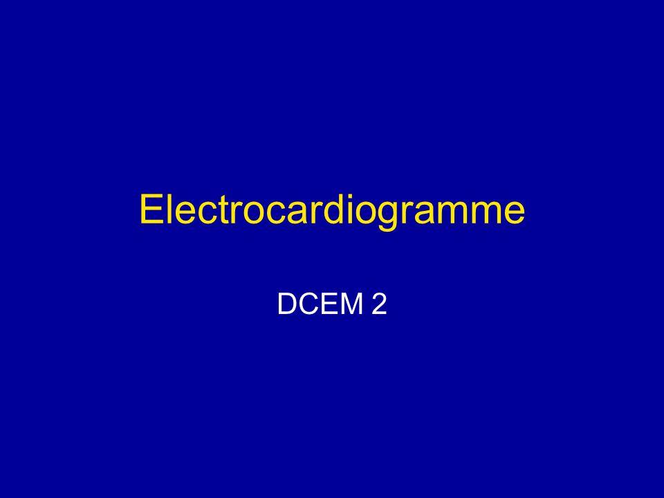 Electrocardiogramme Respect des conditions techniques.