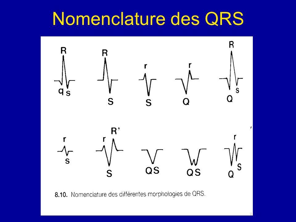 Nomenclature des QRS
