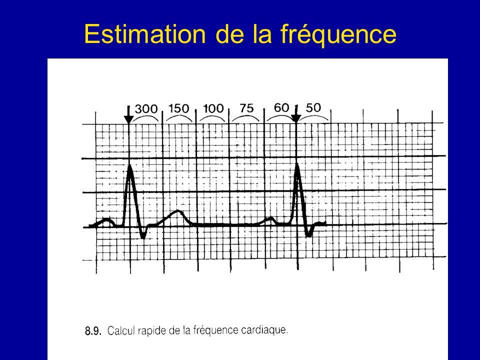 Estimation de la fréquence