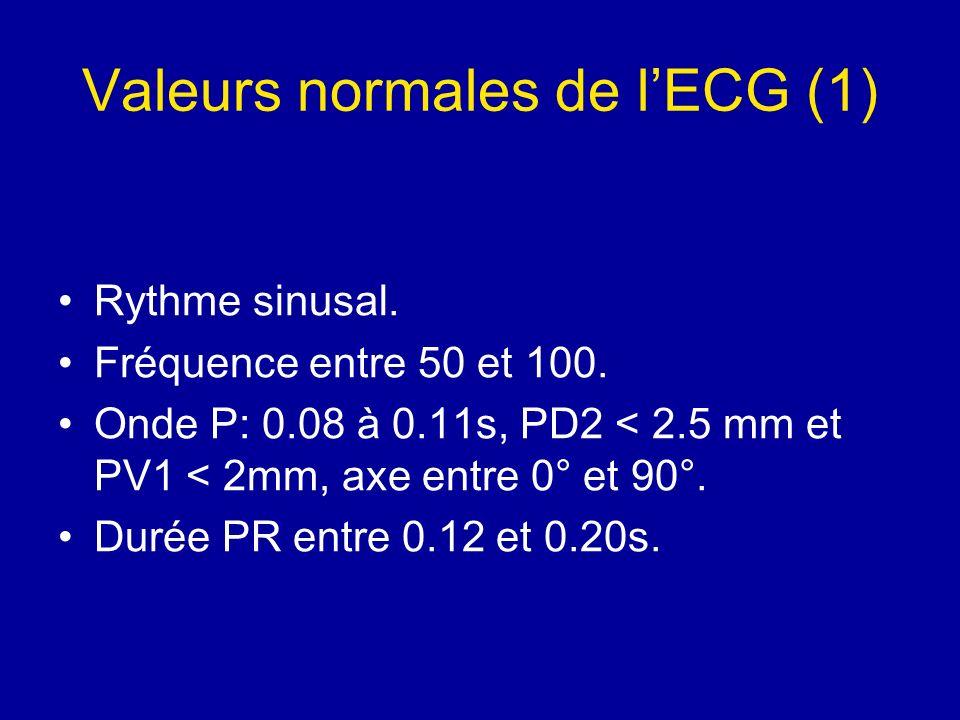 Valeurs normales de lECG (1) Rythme sinusal. Fréquence entre 50 et 100. Onde P: 0.08 à 0.11s, PD2 < 2.5 mm et PV1 < 2mm, axe entre 0° et 90°. Durée PR