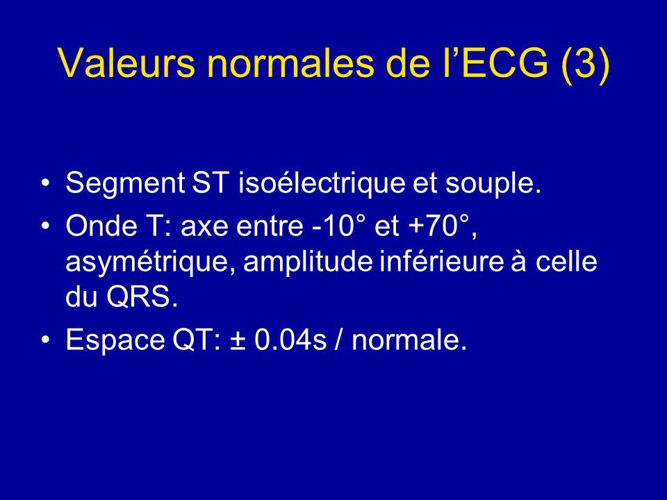 Valeurs normales de lECG (3) Segment ST isoélectrique et souple. Onde T: axe entre -10° et +70°, asymétrique, amplitude inférieure à celle du QRS. Esp