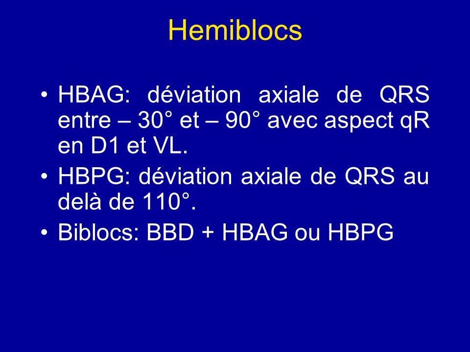 Hemiblocs HBAG: déviation axiale de QRS entre – 30° et – 90° avec aspect qR en D1 et VL. HBPG: déviation axiale de QRS au delà de 110°. Biblocs: BBD +
