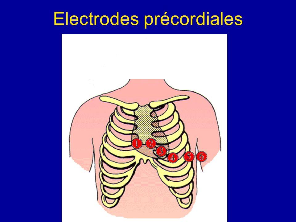 Electrodes précordiales