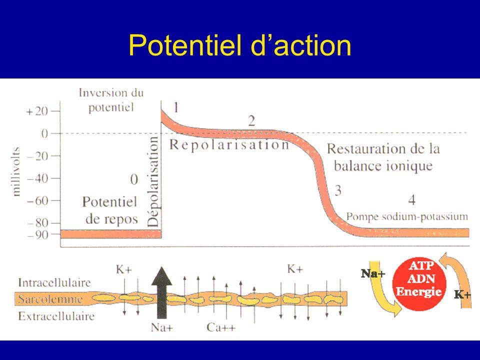 Hemiblocs HBAG: déviation axiale de QRS entre – 30° et – 90° avec aspect qR en D1 et VL.