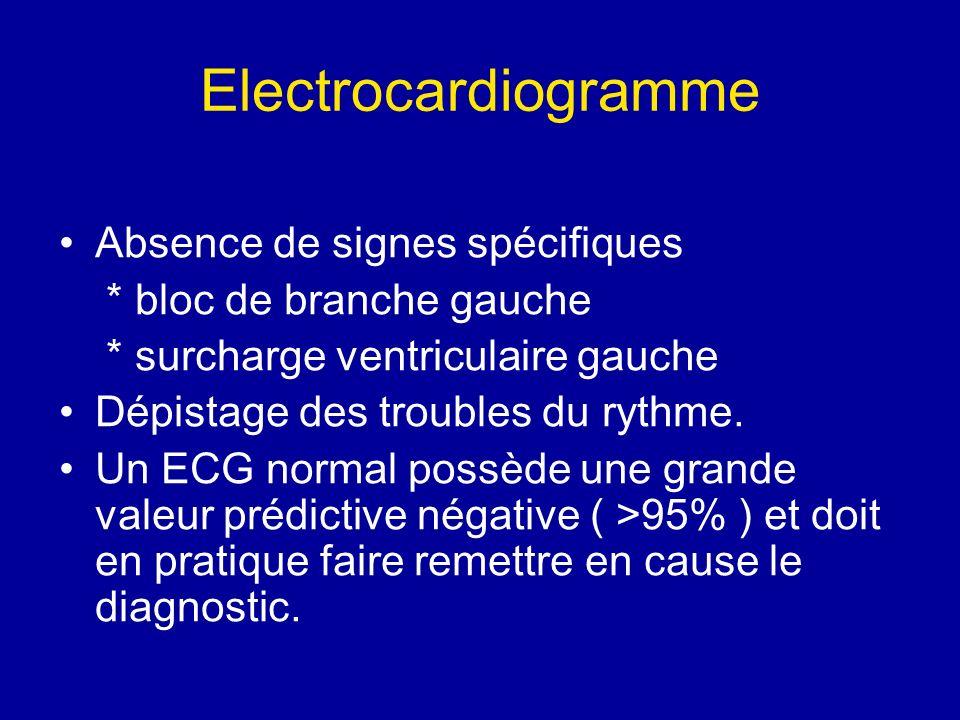 Electrocardiogramme Absence de signes spécifiques * bloc de branche gauche * surcharge ventriculaire gauche Dépistage des troubles du rythme. Un ECG n