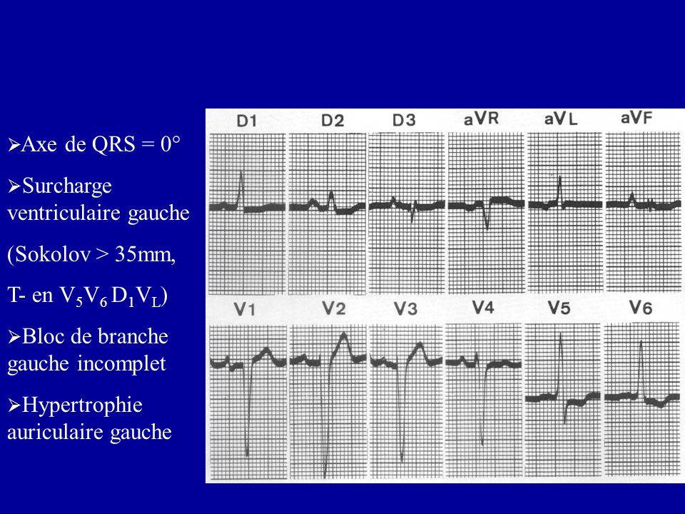 Axe de QRS = 0° Surcharge ventriculaire gauche (Sokolov > 35mm, T- en V 5 V 6 D 1 V L ) Bloc de branche gauche incomplet Hypertrophie auriculaire gauc