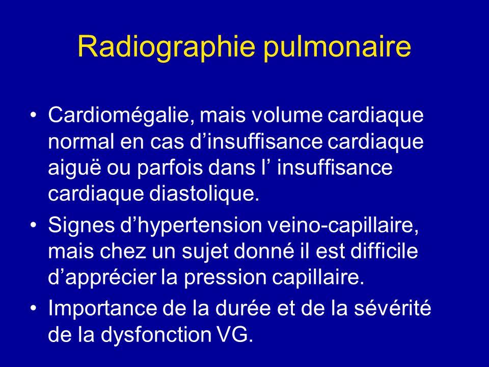 Radiographie pulmonaire Cardiomégalie, mais volume cardiaque normal en cas dinsuffisance cardiaque aiguë ou parfois dans l insuffisance cardiaque dias