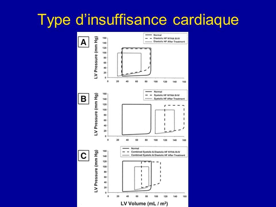 BNP et insuffisance cardiaque droite 16 patients avec embolie pulmonaire dont 5 avec une IVD.