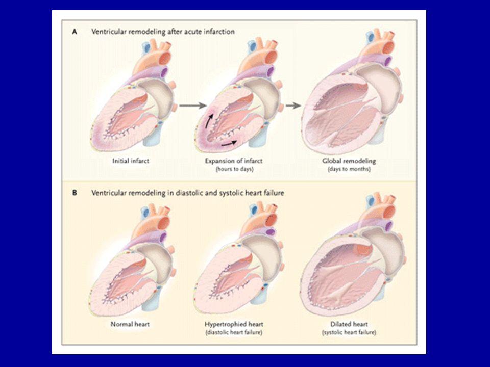 Diagnostic de linsuffisance cardiaque Symptômes au repos ou à leffort et Présence objective dune dysfonction VG et Réponse thérapeutique (en cas de doute diagnostic ) Remme et al.