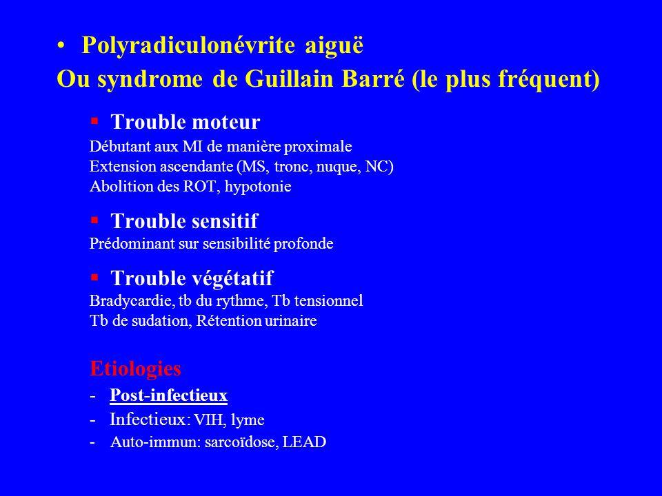 Polyradiculonévrite aiguë Ou syndrome de Guillain Barré (le plus fréquent) Trouble moteur Débutant aux MI de manière proximale Extension ascendante (M