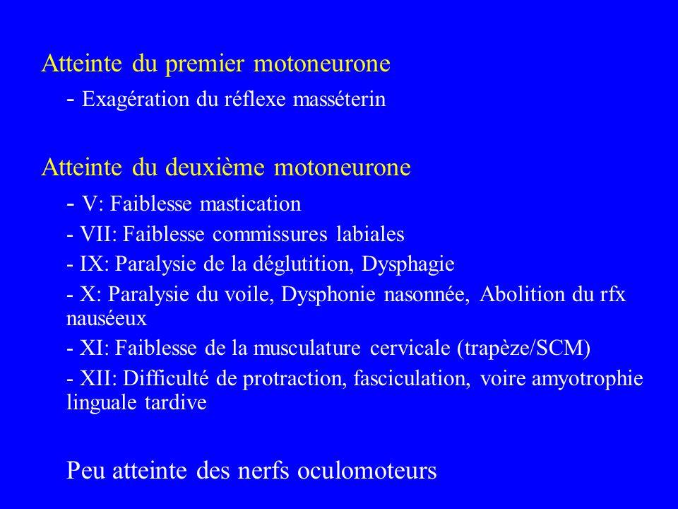 Atteinte du premier motoneurone - Exagération du réflexe masséterin Atteinte du deuxième motoneurone - V: Faiblesse mastication - VII: Faiblesse commi