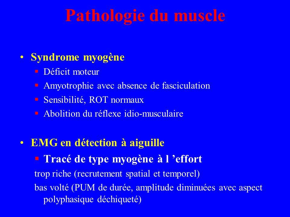 Pathologie du muscle Syndrome myogène Déficit moteur Amyotrophie avec absence de fasciculation Sensibilité, ROT normaux Abolition du réflexe idio-musc