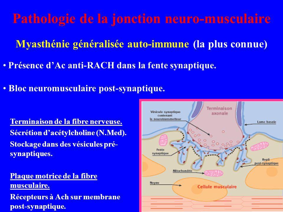 Pathologie de la jonction neuro-musculaire Myasthénie généralisée auto-immune (la plus connue) Présence dAc anti-RACH dans la fente synaptique. Bloc n