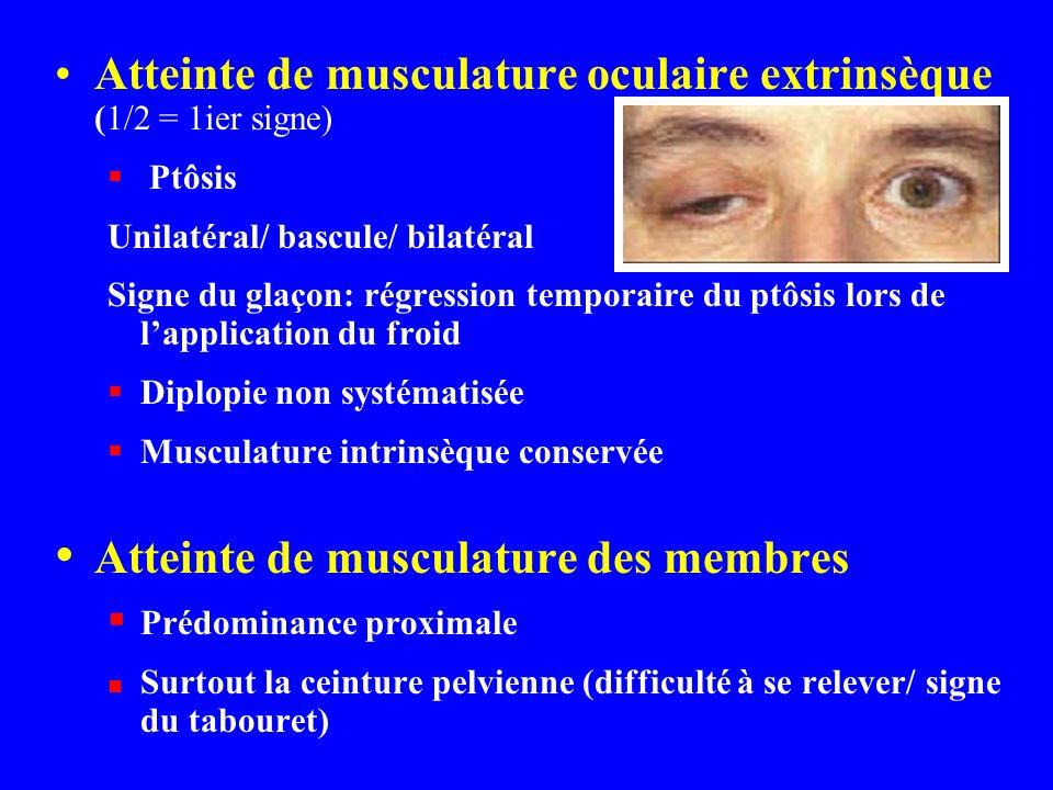 Atteinte de musculature oculaire extrinsèque (1/2 = 1ier signe) Ptôsis Unilatéral/ bascule/ bilatéral Signe du glaçon: régression temporaire du ptôsis