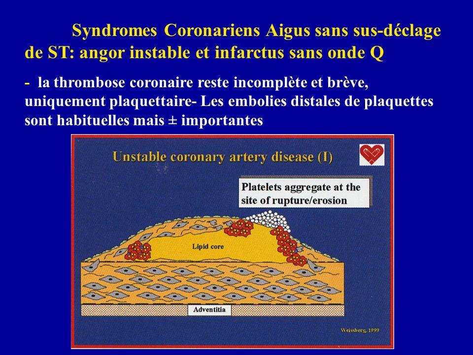 Syndromes Coronariens Aigus sans sus-déclage de ST: angor instable et infarctus sans onde Q - la thrombose coronaire reste incomplète et brève, unique