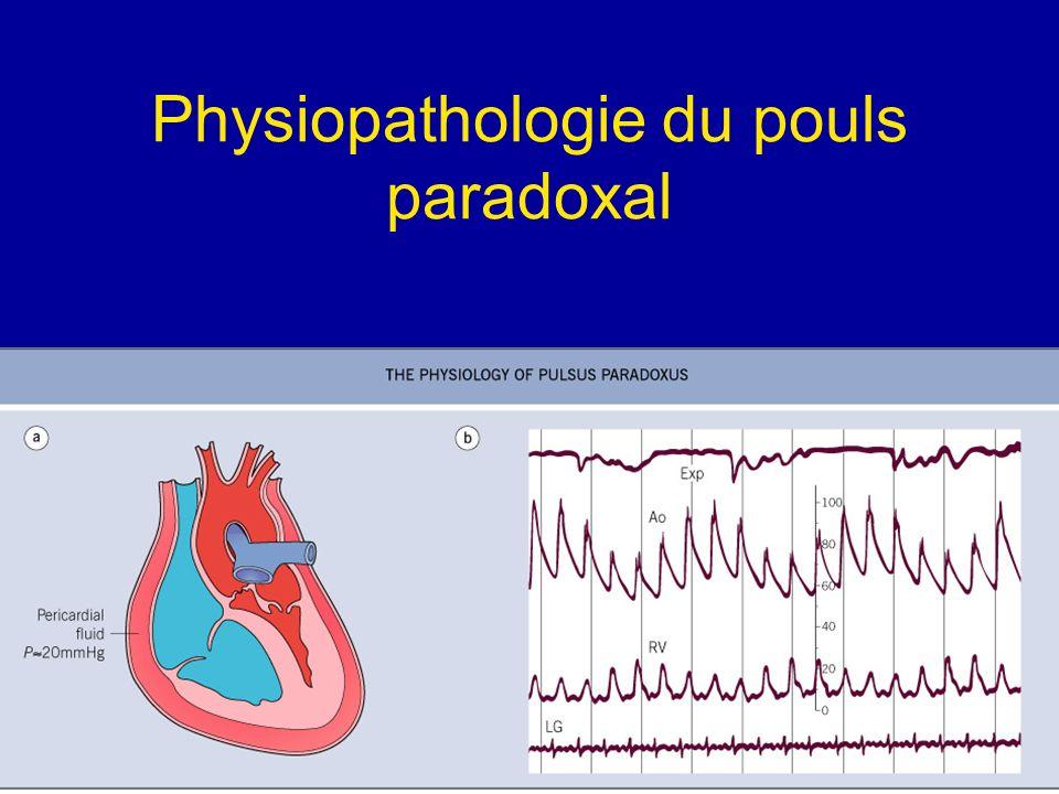 Physiopathologie du pouls paradoxal