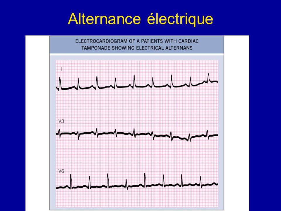 Alternance électrique