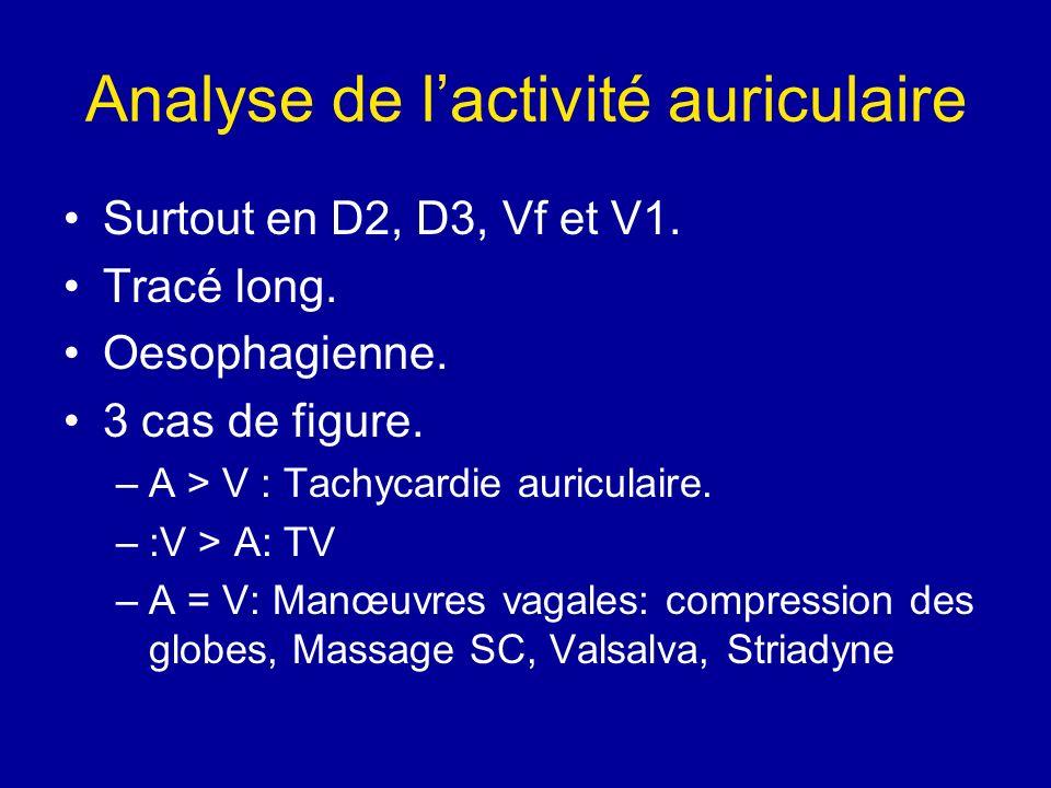 Analyse de lactivité auriculaire Surtout en D2, D3, Vf et V1. Tracé long. Oesophagienne. 3 cas de figure. –A > V : Tachycardie auriculaire. –:V > A: T