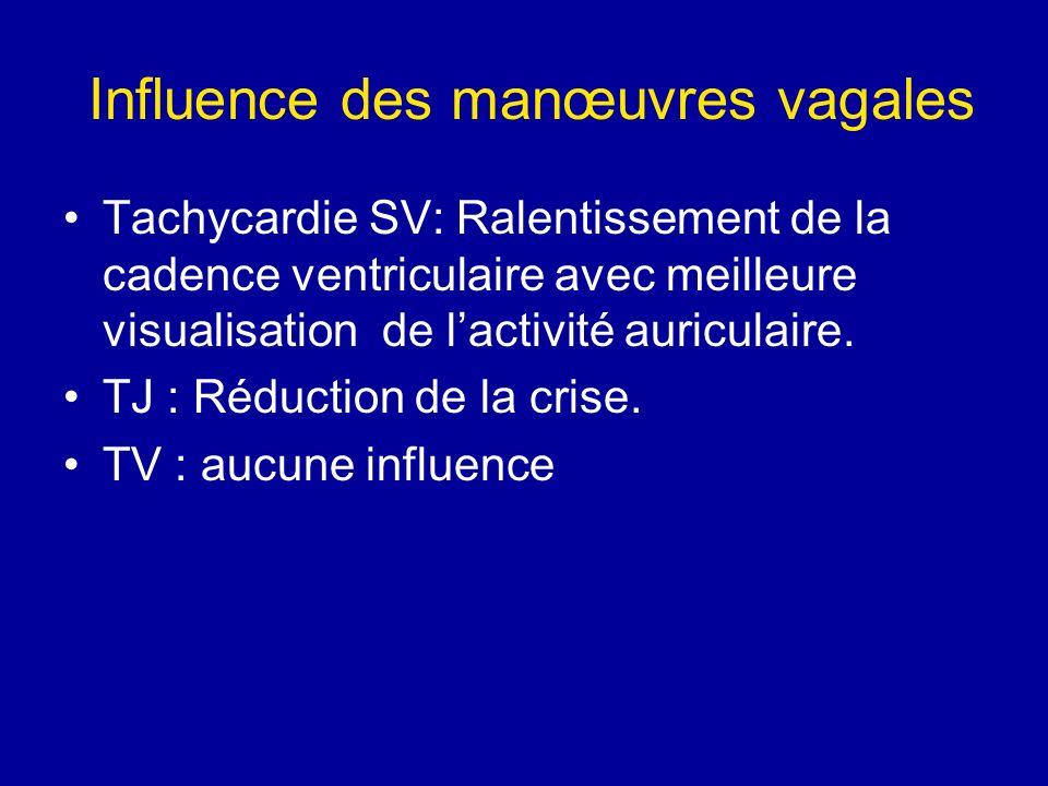 Influence des manœuvres vagales Tachycardie SV: Ralentissement de la cadence ventriculaire avec meilleure visualisation de lactivité auriculaire. TJ :