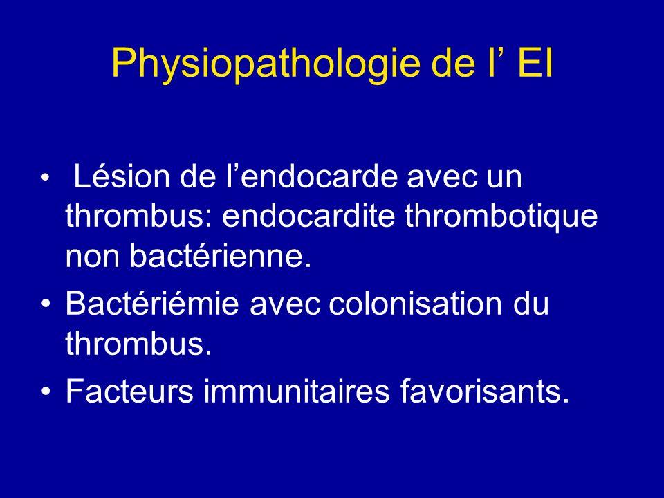 Physiopathologie de l EI Lésion de lendocarde avec un thrombus: endocardite thrombotique non bactérienne. Bactériémie avec colonisation du thrombus. F