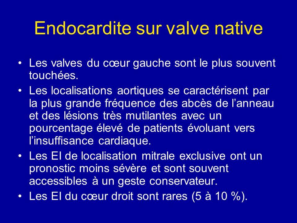 Endocardite sur valve native Les valves du cœur gauche sont le plus souvent touchées. Les localisations aortiques se caractérisent par la plus grande