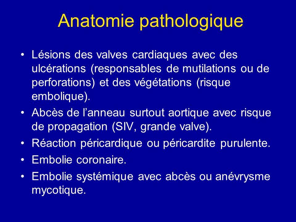 Anatomie pathologique Lésions des valves cardiaques avec des ulcérations (responsables de mutilations ou de perforations) et des végétations (risque e