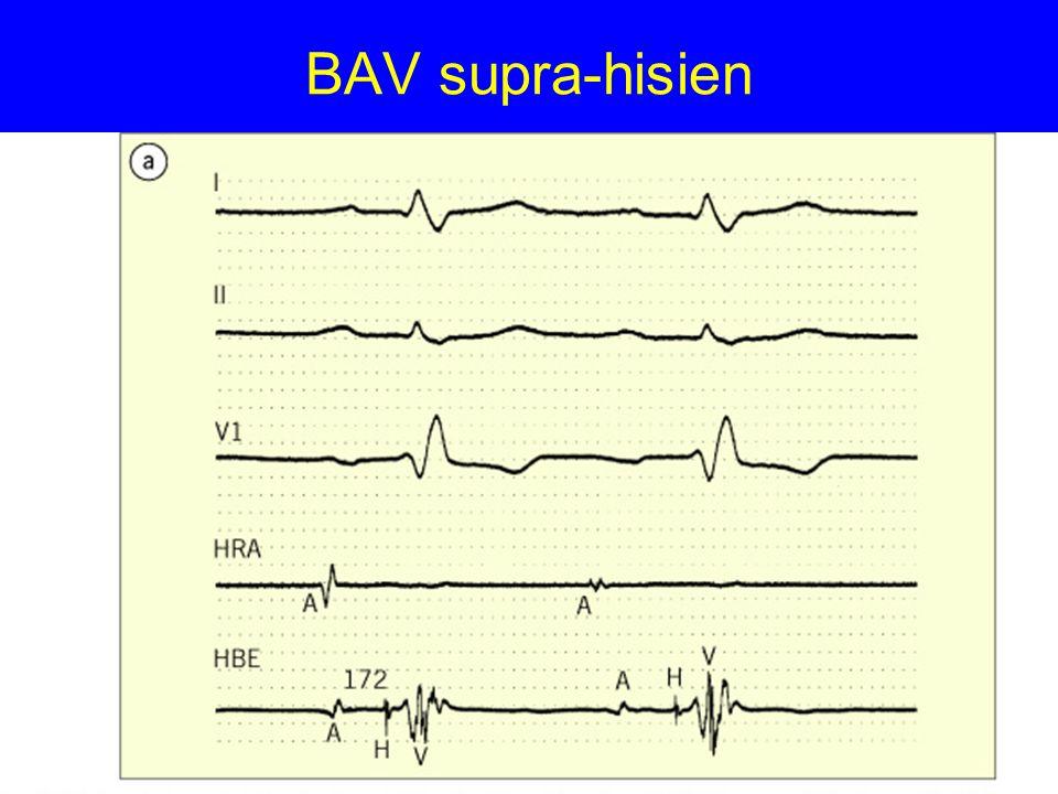 BAV intra-hisien