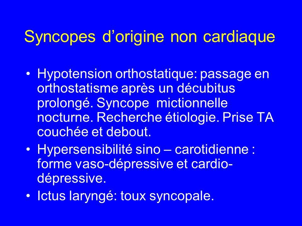 Syncopes atypiques ECG Enregistrement de longue durée : Holter Test dinclinaison.