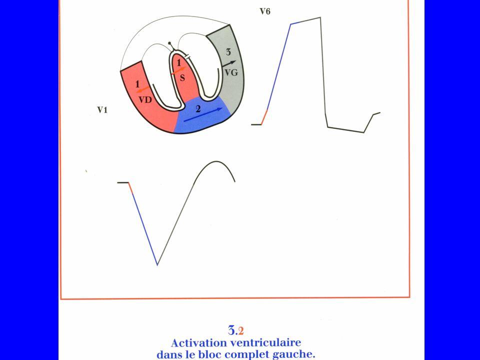 Blocs de branche Pour le diagnostic, nécessité dune conduction à partir de loreillette, dun retard de la déflection intrinsèque et des modifications spécifiques du QRS.