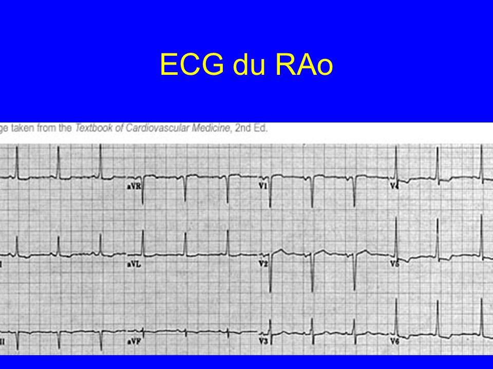 ECG du RAo