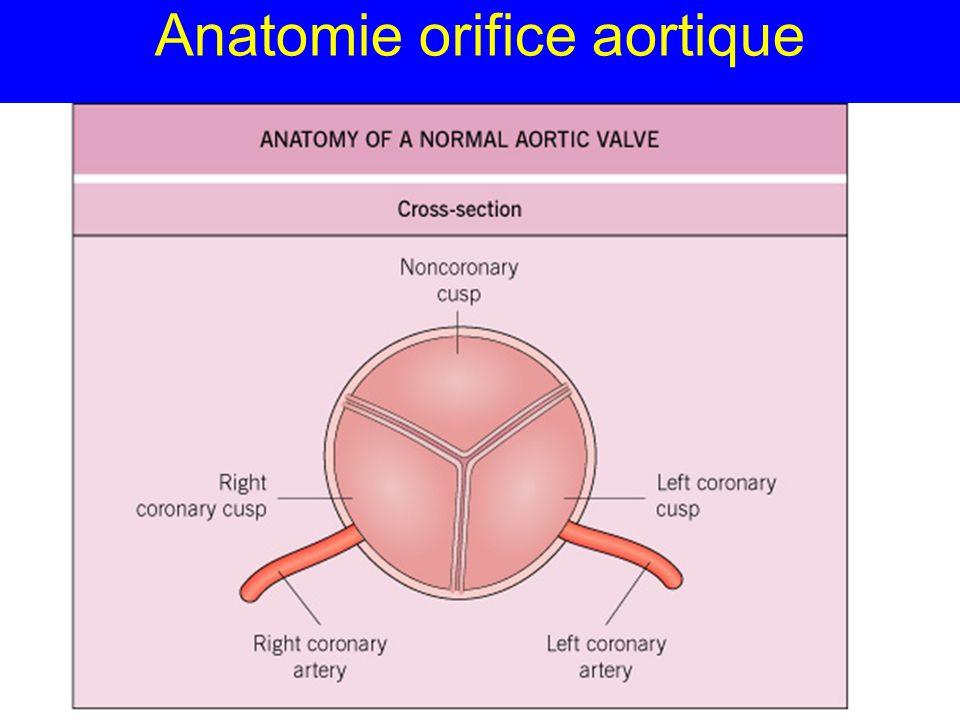 Anatomie orifice aortique