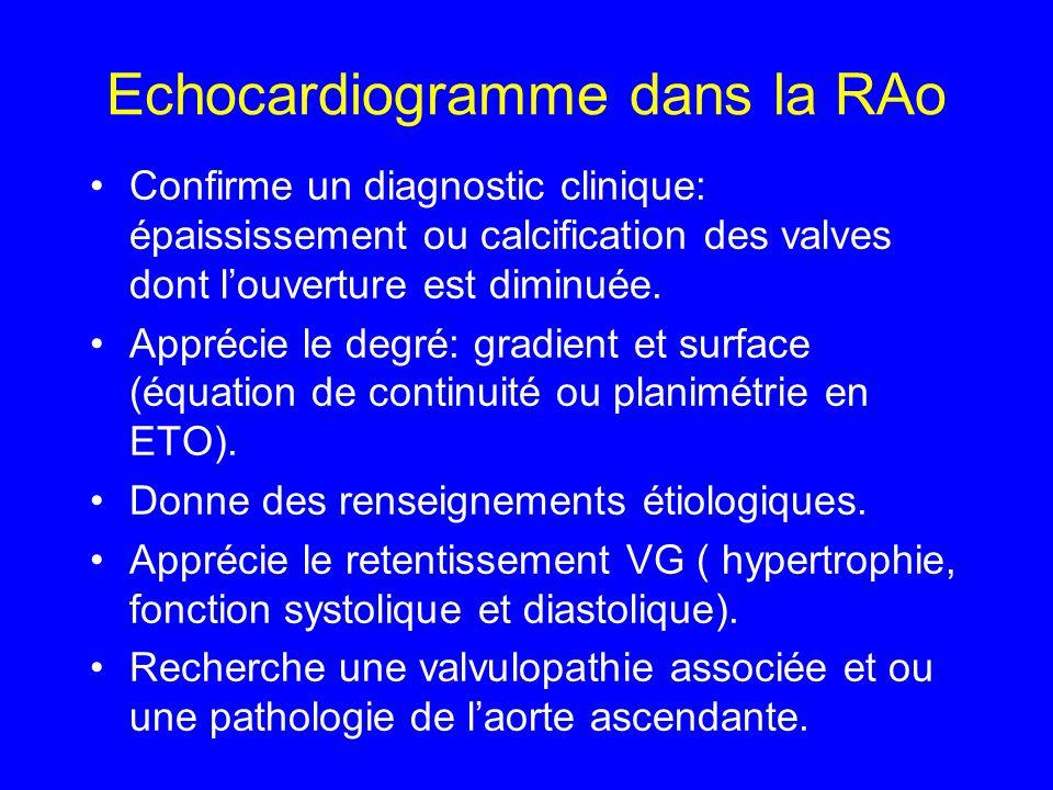 Echocardiogramme dans la RAo Confirme un diagnostic clinique: épaississement ou calcification des valves dont louverture est diminuée. Apprécie le deg