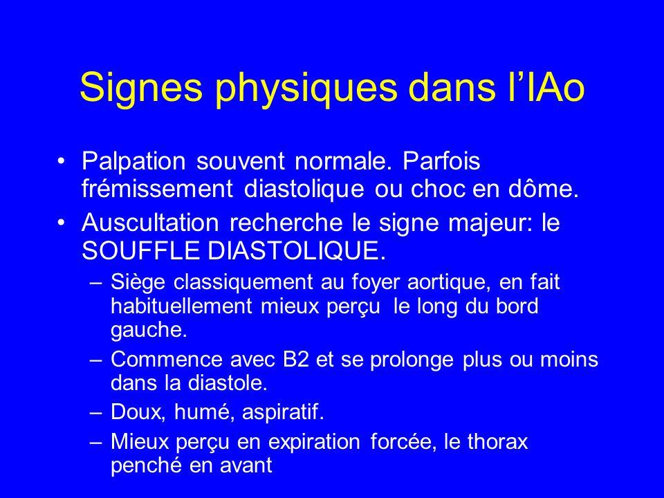 Signes physiques dans lIAo Palpation souvent normale. Parfois frémissement diastolique ou choc en dôme. Auscultation recherche le signe majeur: le SOU